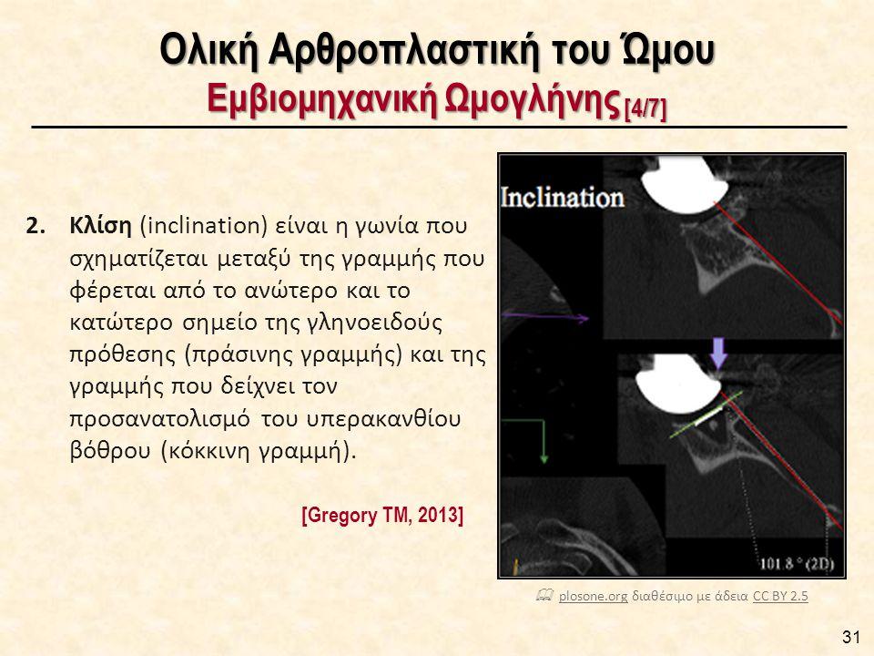Ολική Αρθροπλαστική του Ώμου Εμβιομηχανική Ωμογλήνης [4/7] 2.Κλίση (inclination) είναι η γωνία που σχηματίζεται μεταξύ της γραμμής που φέρεται από το