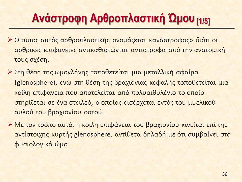 Ανάστροφη Αρθροπλαστική Ώμου [1/5]  Ο τύπος αυτός αρθροπλαστικής ονομάζεται «ανάστροφος» διότι οι αρθρικές επιφάνειες αντικαθιστώνται αντίστροφα από την ανατομική τους σχέση.