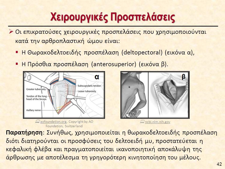 Χειρουργικές Προσπελάσεις  Οι επικρατούσες χειρουργικές προσπελάσεις που χρησιμοποιούνται κατά την αρθροπλαστική ώμου είναι:  Η Θωρακοδελτοειδής προσπέλαση (deltopectoral) (εικόνα α),  Η Πρόσθια προσπέλαση (anterosuperior) (εικόνα β).