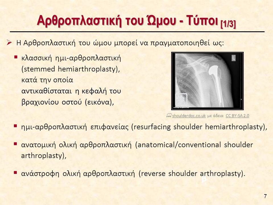 Αρθροπλαστική του Ώμου - Τύποι [1/3] 7  Η Αρθροπλαστική του ώμου μπορεί να πραγματοποιηθεί ως: β  ημι-αρθροπλαστική επιφανείας (resurfacing shoulder hemiarthroplasty),  ανατομική ολική αρθροπλαστική (anatomical/conventional shoulder arthroplasty),  ανάστροφη ολική αρθροπλαστική (reverse shoulder arthroplasty).
