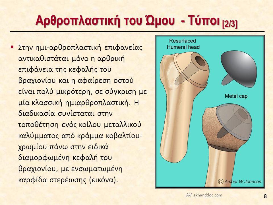 Ο Κανόνας «40/50/60»  Διεγχειρητικά, ελέγχεται το κατάλληλο μέγεθος και η ορθή τοποθέτηση της βραχιονίου κεφαλής και του πολυαιθυλενίου της ωμογλήνης με τον κανόνα «40/50/60», σύμφωνα με τον οποίο θα πρέπει κατά την κινητοποίηση του μέλους από τον χειρουργό: 49  Η τάση του υποπλατίου μυ να επιτρέπει τουλάχιστον 40 ο έξω στροφής (εικόνα α),  Μετά το τέλος της παθητικής οπίσθιας μετατόπισης της κεφαλής, να παραμένει καλυμμένο το 50% της αρθρικής επιφάνειας της ωμογλήνης (εικόνα β),  Από θέση απαγωγής του ώμου, να πραγματοποιείται 60 ο έσω στροφής (εικόνα γ).