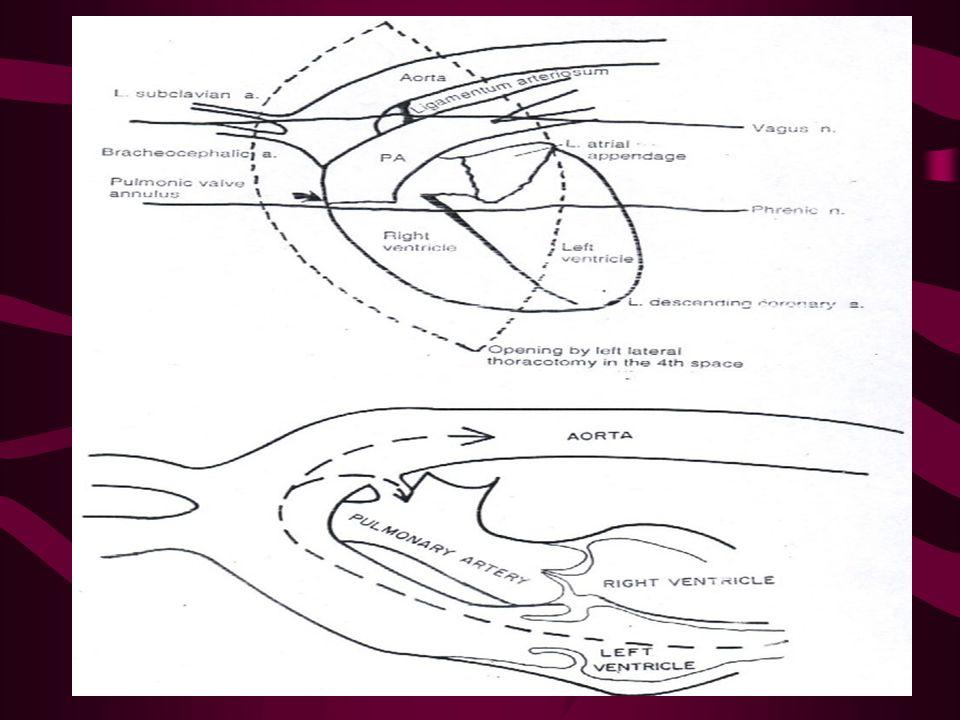 1-2% ζώων: Δεξιο-αριστερή διαφυγή λόγω πνευμ.υπέρτασης →υπερτροφία δεξ.