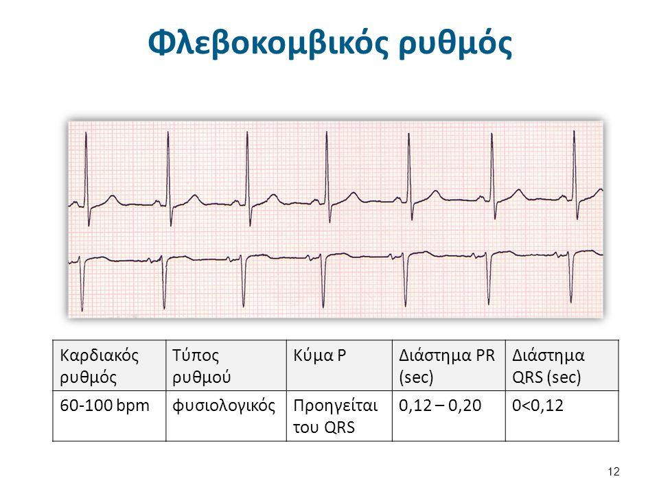 Παθοφυσιολογία αρρυθμιών (μηχανισμοί)  Οι αρρυθμίες οφείλονται σε 2 μηχανισμούς: Διαταραχή της παραγωγής του καρδιακού ερεθίσματος δηλ., διαταραχή του αυτοματισμού των καρδιακών κυττάρων, Διαταραχή της αγωγής του ερεθίσματος.