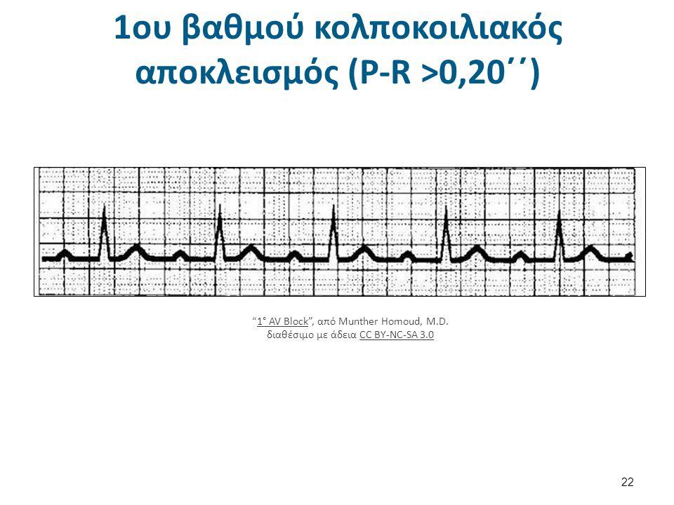 Δεύτερου βαθμού ΚΚΑ – Mobitz I 23 Mobitz I 2º AV Block Wenckebach Block , από Munther Homoud, M.D.