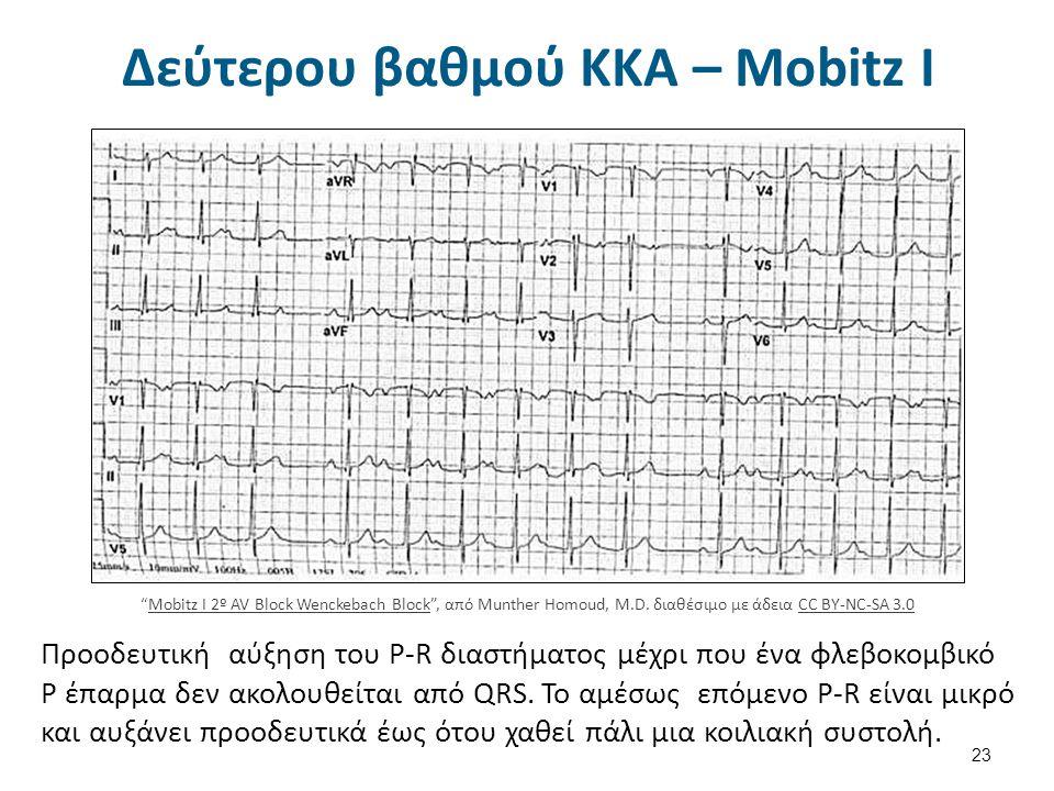 Δεύτερου βαθμού ΚΚΑ – Mobitz II 24 Mobitz II – 2° AV Block , από Munther Homoud, M.D.