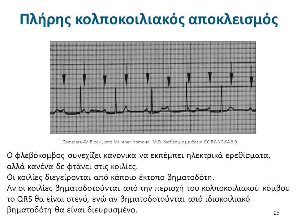 Υπερκοιλιακή ταχυκαρδία 26 Tachycardia marked , από JΗeuser διαθέσιμο με άδεια CC BY-SA 3.0Tachycardia markedJΗeuser CC BY-SA 3.0 Καρδιακή συχνότητα μεταξύ 130 – 250 σφύξεις.