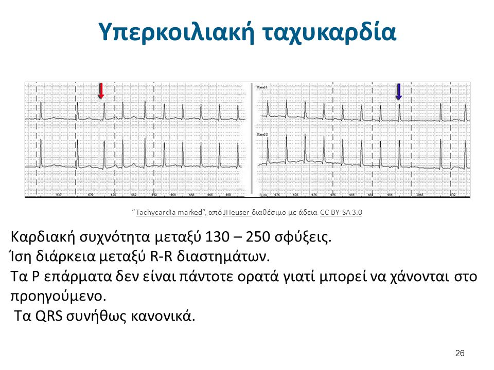 Κολπικός πτερυγισμός 27 Atrial flutter34 , από Mysid διαθέσιμο με άδεια CC BY-SA 3.0Atrial flutter34Mysid CC BY-SA 3.0 Συστολή των κόλπων με συχνότητα 250-350 το λεπτό.
