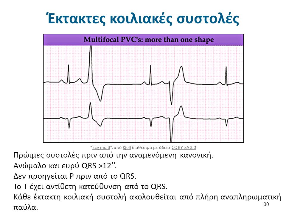 Κοιλιακή ταχυκαρδία 31 Vtach , από Kjell διαθέσιμο με άδεια CC BY-SA 3.0VtachKjellCC BY-SA 3.0 Ανώμαλα διευρυσμένα QRS, ρυθμικά 120-220/min.