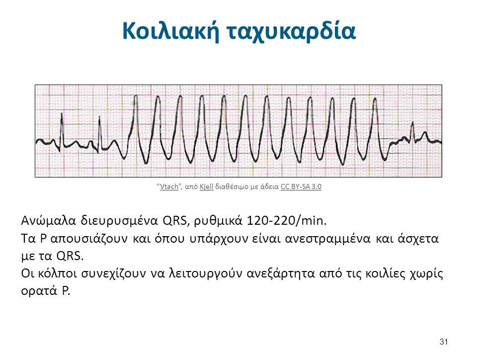 Κοιλιακή μαρμαρυγή 32 Vfib , από Kjell διαθέσιμο με άδεια CC BY-SA 3.0KjellCC BY-SA 3.0 Διεγείρονται συγχρόνως πολλές έκτοπες εστίες στο κοιλιακό μυοκάρδιο οι οποίες προκαλούν γρήγορες, ασυγχρόνιστες, ινιδώδεις και χαώδεις κινήσεις.