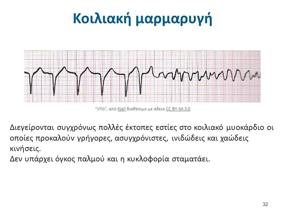 Παθολογικά ΗΚΓφήματα 33 Rhythm tachycardia Rhythm tachycardia διαθέσιμο με άδεια CC BY-NC-SA 3.0CC BY-NC-SA 3.0 Lead II rhythm generated ventricular fibrilation VF , από Glenlarson διαθέσιμο ως κοινό κτήμαLead II rhythm generated ventricular fibrilation VFGlenlarson Type I A-V block 5-to-4 Wenckebach periods , από Jer5150 διαθέσιμο με άδεια CC BY-SA 3.0Type I A-V block 5-to-4 Wenckebach periodsJer5150CC BY-SA 3.0