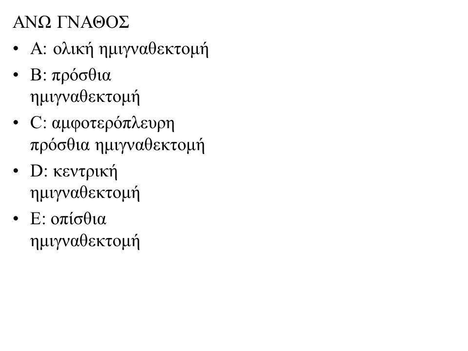 ΑΝΩ ΓΝΑΘΟΣ Α: ολική ημιγναθεκτομή Β: πρόσθια ημιγναθεκτομή C: αμφοτερόπλευρη πρόσθια ημιγναθεκτομή D: κεντρική ημιγναθεκτομή E: οπίσθια ημιγναθεκτομή