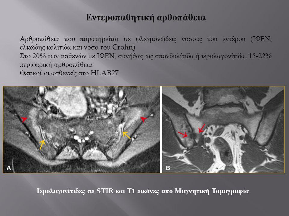 Εντεροπαθητική αρθοπάθεια Αρθροπάθεια που παρατηρείται σε φλεγμονώδεις νόσους του εντέρου ( ΙΦΕΝ, ελκώδης κολίτιδα και νόσο του Crohn) Στο 20% των ασθ
