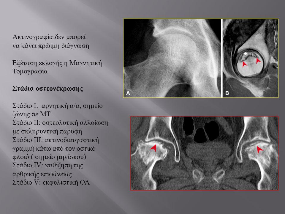 Ακτινογραφία : δεν μπορεί να κάνει πρώιμη διάγνωση Εξέταση εκλογής η Μαγνητική Τομογραφία Στάδια οστεονέκρωσης Στάδιο Ι: αρνητική α/α, σημείο ζώνης σε