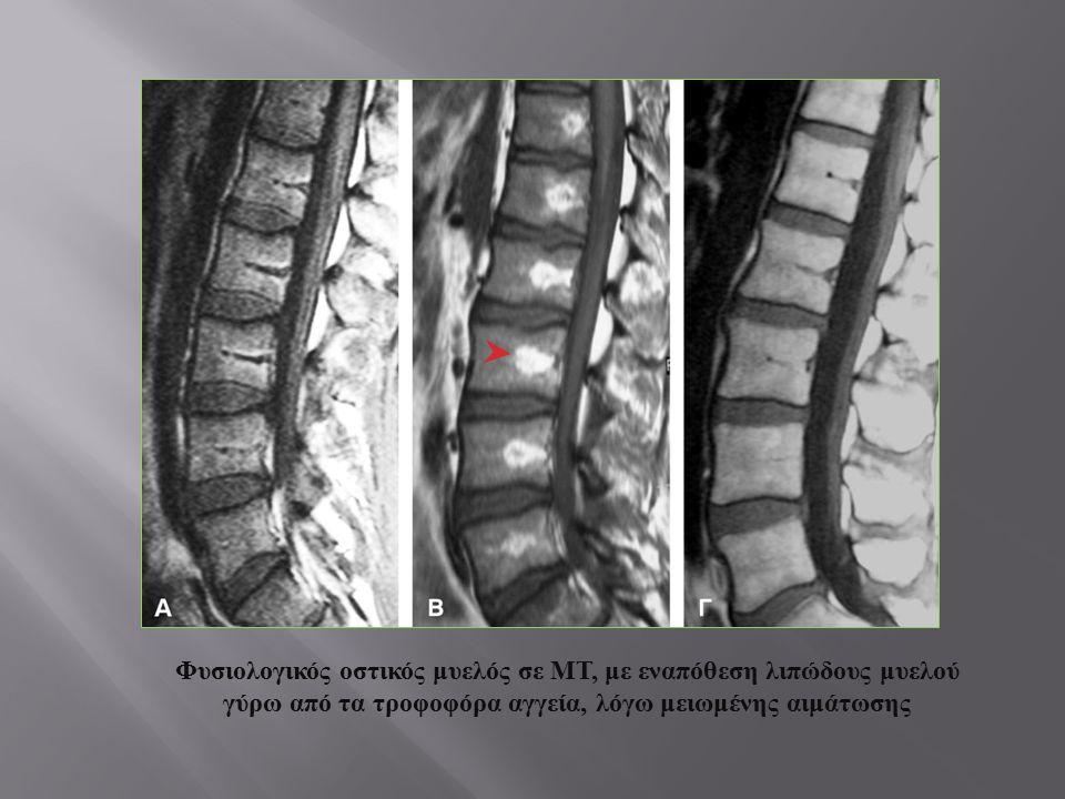 Φυσιολογικός οστικός μυελός σε ΜΤ, με εναπόθεση λιπώδους μυελού γύρω από τα τροφοφόρα αγγεία, λόγω μειωμένης αιμάτωσης