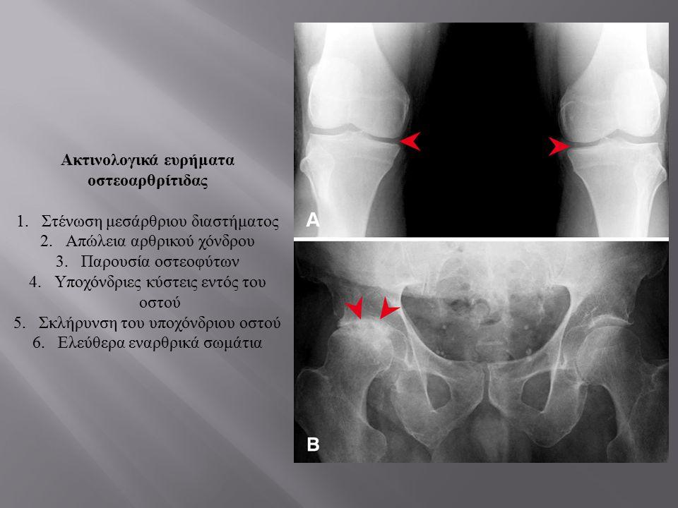 Ακτινολογικά ευρήματα οστεοαρθρίτιδας 1.Στένωση μεσάρθριου διαστήματος 2.Απώλεια αρθρικού χόνδρου 3.Παρουσία οστεοφύτων 4.Υποχόνδριες κύστεις εντός το