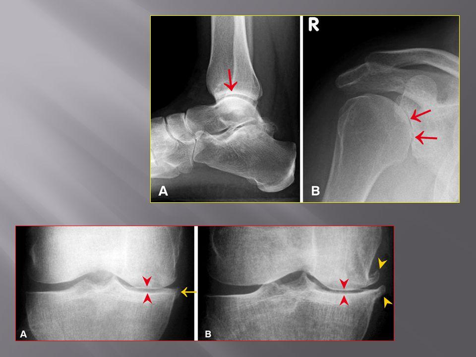 Νοσήματα του αιμοποιητικού συστήματος με εκδηλώσεις από το σκελετό 1.Πολλαπλούν μυέλωμα 2.Πλασματοκύτωμα 3.Λέμφωμα Ανάδειξη φυσιολογικού οστικού μυελού σε Μαγνητική Τομογραφία Ερυθρός και λιπώδης μυελός : η αναλογία τους μεταβάλλεται ανάλογα την ηλικία του εξεταζόμενου Φυσιολογικός οστικός μυελός