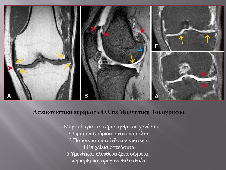Απεικονιστικά ευρήματα ΟΑ σε Μαγνητική Τομογραφία 1 Μορφολογία και σήμα αρθρικού χόνδρου 2 Σήμα υποχόδριου οστικού μυελού 3 Παρουσία υποχόνδριων κύστε