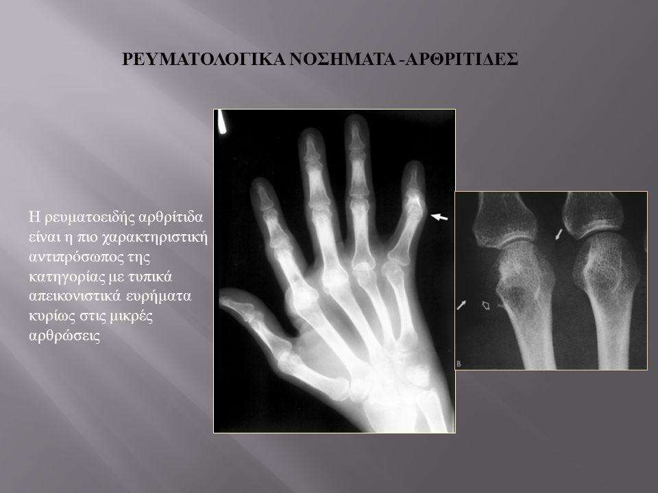 Νευροπαθητική αρθροπάθεια (Charcot's) Αφορά καταστρεπτικές εκδηλώσεις σε οστά και αρθρώσεις λόγω νευροαισθητήριου ελλείμματος Αίτια: διαβήτης, συριγγο-υδρομυελία Ατροφική και υπερτροφική μορφή ΔΔ σηπτική αρθρίτιδα