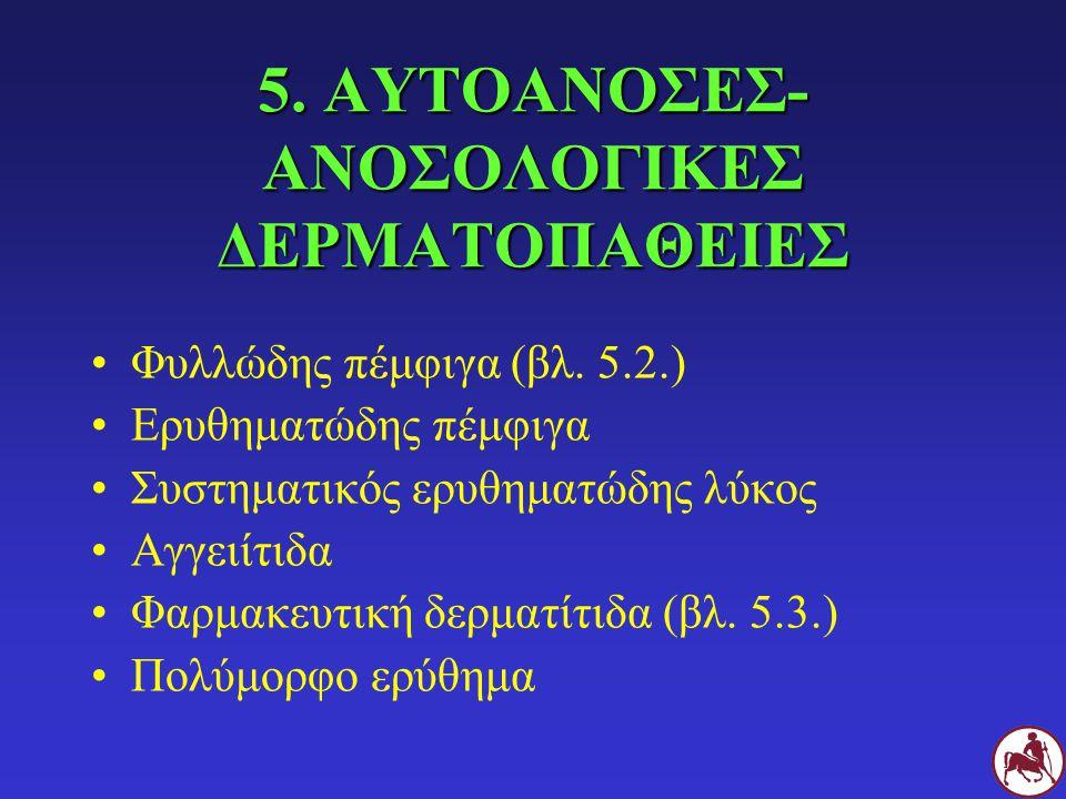 5. ΑΥΤΟΑΝΟΣΕΣ- ΑΝΟΣΟΛΟΓΙΚΕΣ ΔΕΡΜΑΤΟΠΑΘΕΙΕΣ Φυλλώδης πέμφιγα (βλ. 5.2.) Ερυθηματώδης πέμφιγα Συστηματικός ερυθηματώδης λύκος Αγγειίτιδα Φαρμακευτική δε