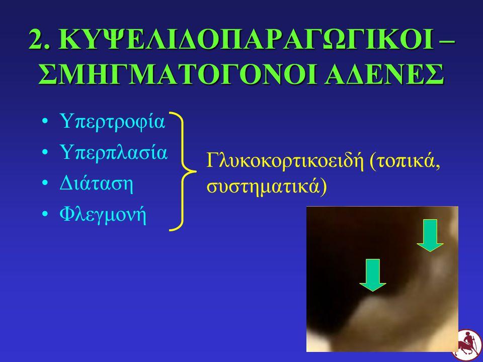 2. ΚΥΨΕΛΙΔΟΠΑΡΑΓΩΓΙΚΟΙ – ΣΜΗΓΜΑΤΟΓΟΝΟΙ ΑΔΕΝΕΣ Υπερτροφία Υπερπλασία Διάταση Φλεγμονή Γλυκοκορτικοειδή (τοπικά, συστηματικά)