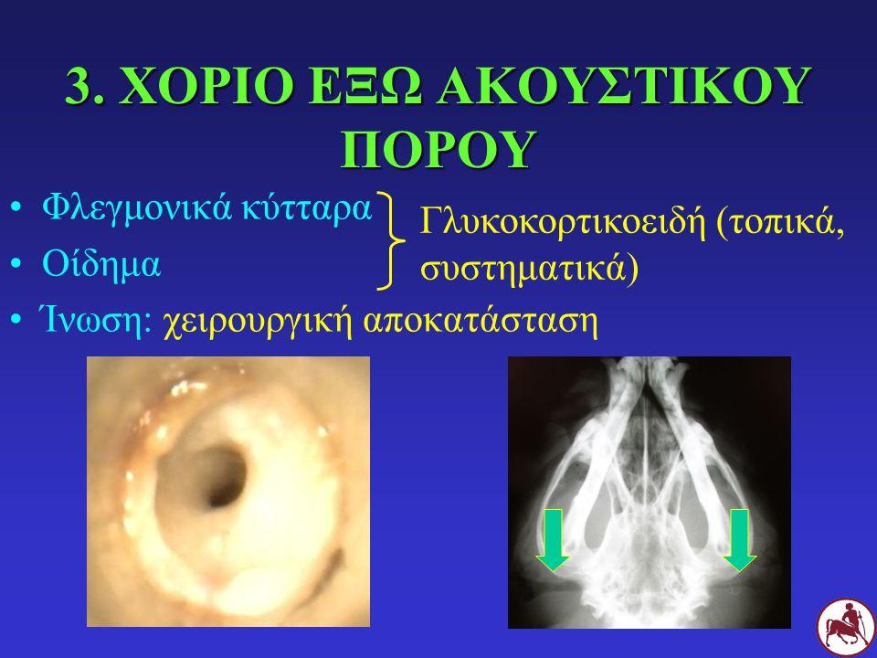 3. ΧΟΡΙΟ ΕΞΩ ΑΚΟΥΣΤΙΚΟΥ ΠΟΡΟΥ Φλεγμονικά κύτταρα Οίδημα Ίνωση: χειρουργική αποκατάσταση Γλυκοκορτικοειδή (τοπικά, συστηματικά)