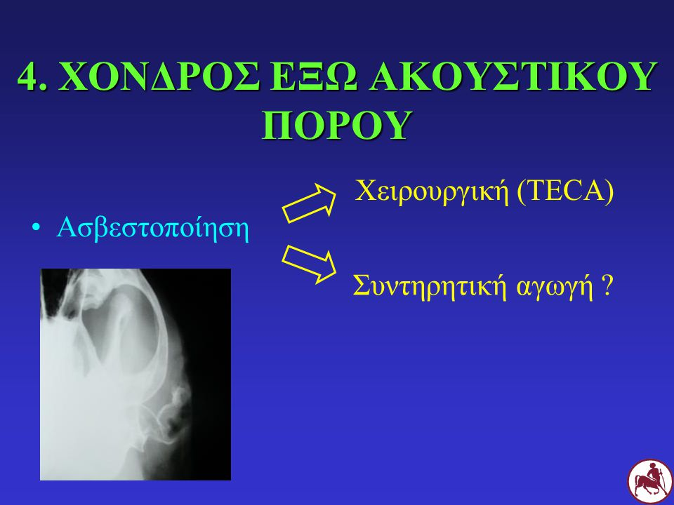 4. ΧΟΝΔΡΟΣ ΕΞΩ ΑΚΟΥΣΤΙΚΟΥ ΠΟΡΟΥ Ασβεστοποίηση Χειρουργική (TECA) Συντηρητική αγωγή ?