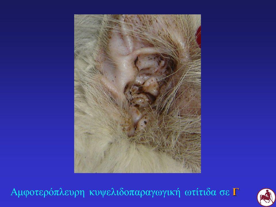 Γ Αμφοτερόπλευρη κυψελιδοπαραγωγική ωτίτιδα σε Γ