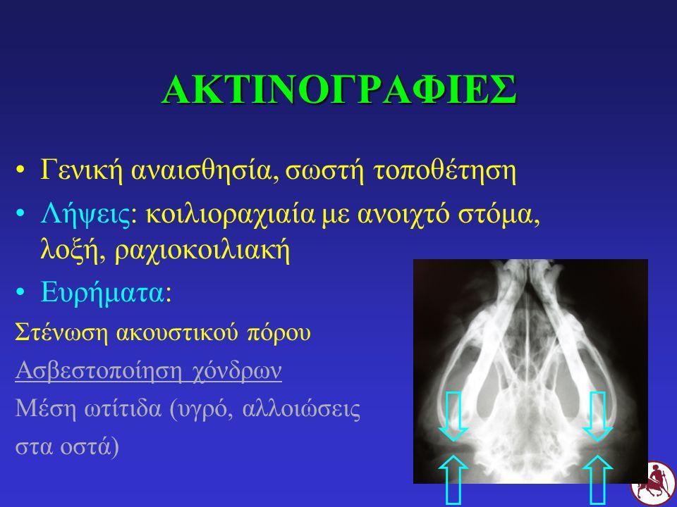 ΑΚΤΙΝΟΓΡΑΦΙΕΣ Γενική αναισθησία, σωστή τοποθέτηση Λήψεις: κοιλιοραχιαία με ανοιχτό στόμα, λοξή, ραχιοκοιλιακή Ευρήματα: Στένωση ακουστικού πόρου Ασβεσ