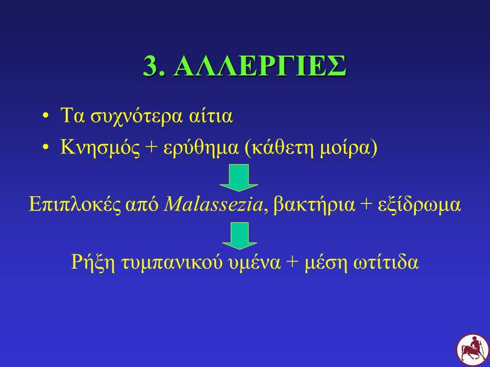 3. ΑΛΛΕΡΓΙΕΣ Τα συχνότερα αίτια Κνησμός + ερύθημα (κάθετη μοίρα) Επιπλοκές από Malassezia, βακτήρια + εξίδρωμαΡήξη τυμπανικού υμένα + μέση ωτίτιδα