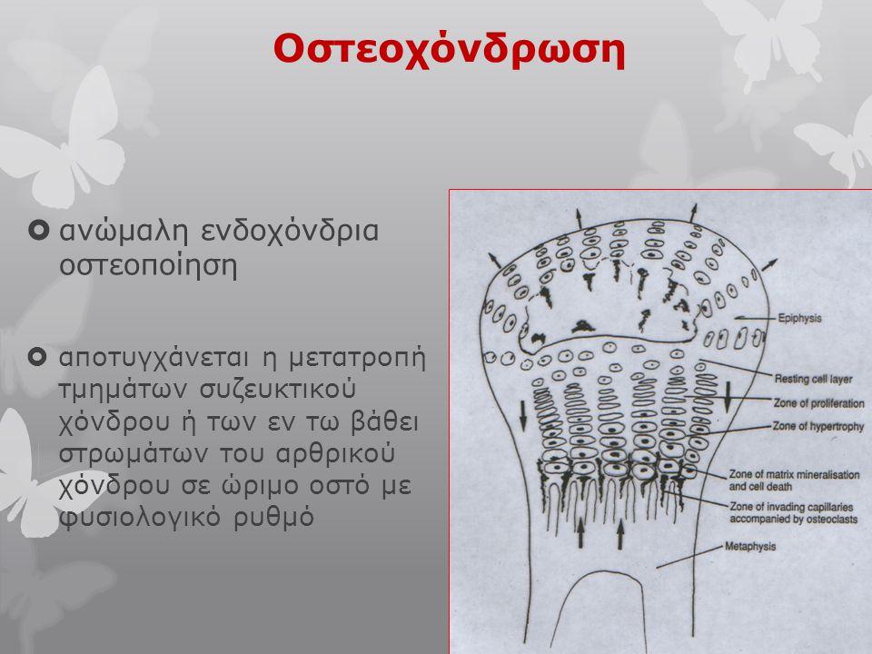Οστεοχόνδρωση  ανώμαλη ενδοχόνδρια οστεοποίηση  αποτυγχάνεται η μετατροπή τμημάτων συζευκτικού χόνδρου ή των εν τω βάθει στρωμάτων του αρθρικού χόνδ