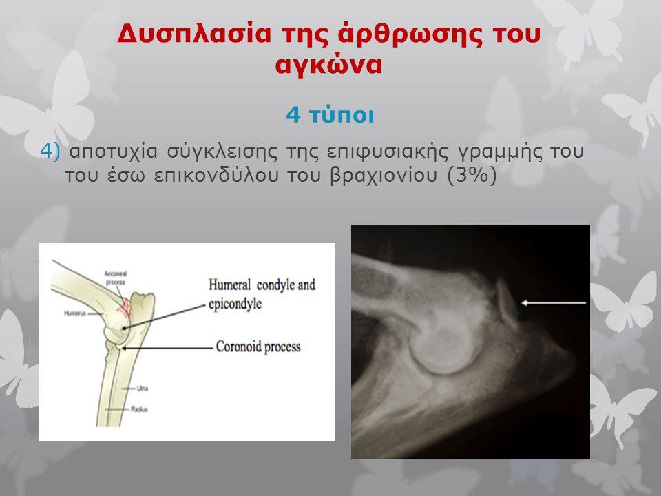 Δυσπλασία της άρθρωσης του αγκώνα 4 τύποι 4) αποτυχία σύγκλεισης της επιφυσιακής γραμμής του του έσω επικονδύλου του βραχιονίου (3%)