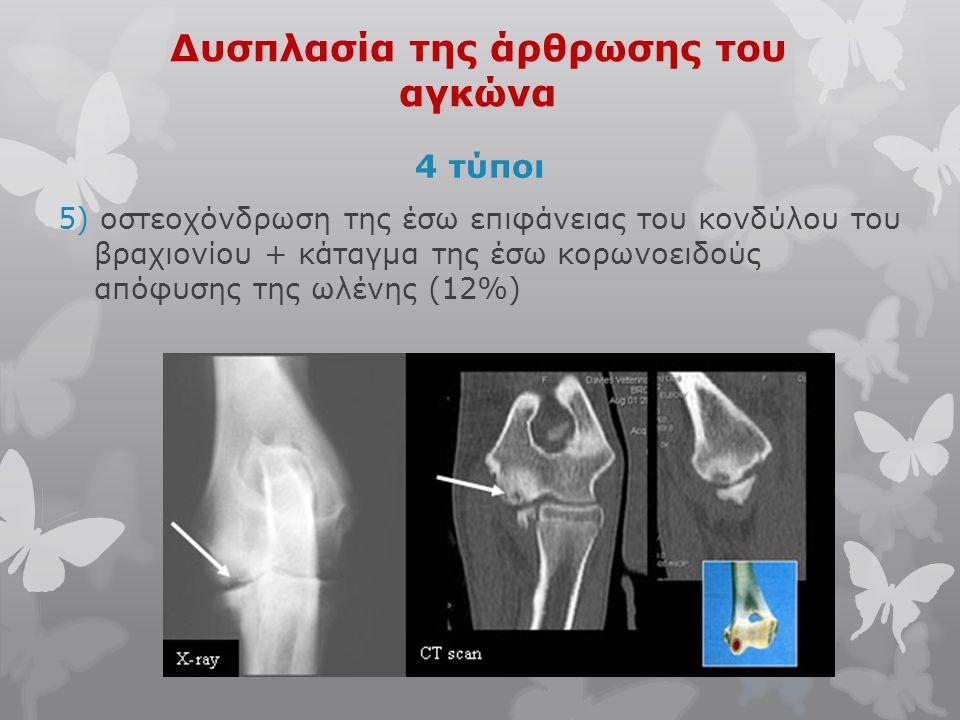 Δυσπλασία της άρθρωσης του αγκώνα 4 τύποι 5) οστεοχόνδρωση της έσω επιφάνειας του κονδύλου του βραχιονίου + κάταγμα της έσω κορωνοειδούς απόφυσης της