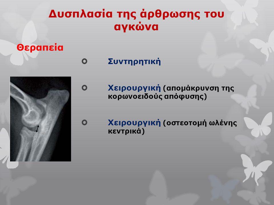 Δυσπλασία της άρθρωσης του αγκώνα Θεραπεία  Συντηρητική  Χειρουργική (απομάκρυνση της κορωνοειδούς απόφυσης)  Χειρουργική (οστεοτομή ωλένης κεντρικ