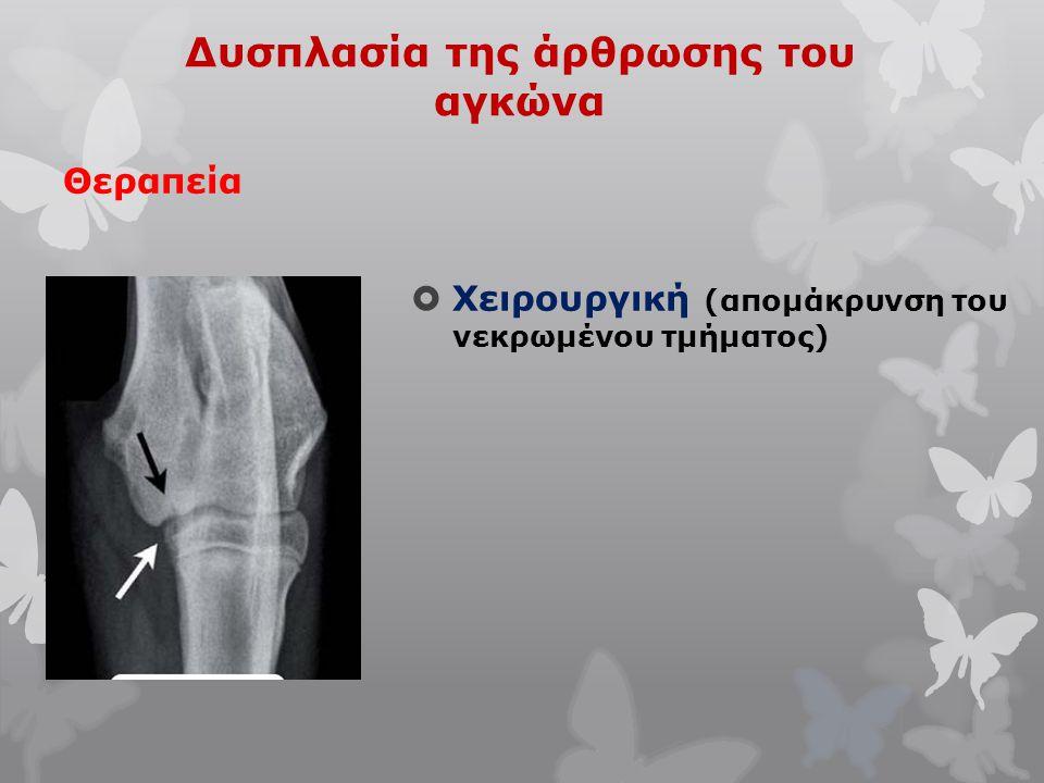 Δυσπλασία της άρθρωσης του αγκώνα Θεραπεία  Χειρουργική (απομάκρυνση του νεκρωμένου τμήματος)