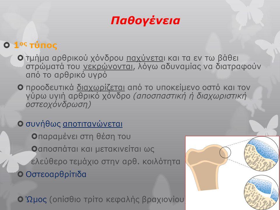 Δυσπλασία της άρθρωσης του αγκώνα 4 τύποι 2) οστεοχόνδρωση της έσω επιφάνειας του κονδύλου του βραχιονίου (25%)