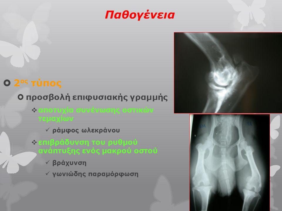 Παθογένεια  3 ος τύπος  πρωτογενές κέντρο οστεοποίησης δεν αναπτύσσεται φυσιολογικά σκαφομηνοειδές οστό  4 ος τύπος  δευτερογενές κέντρο οστεοποίησης δεν αναπτύσσεται φυσιολογικά έσω επικόνδυλος βραχιονίου