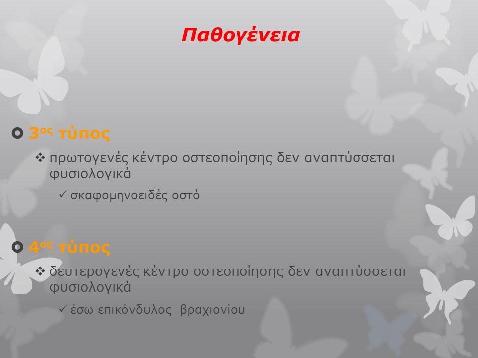 Παθογένεια  3 ος τύπος  πρωτογενές κέντρο οστεοποίησης δεν αναπτύσσεται φυσιολογικά σκαφομηνοειδές οστό  4 ος τύπος  δευτερογενές κέντρο οστεοποίη