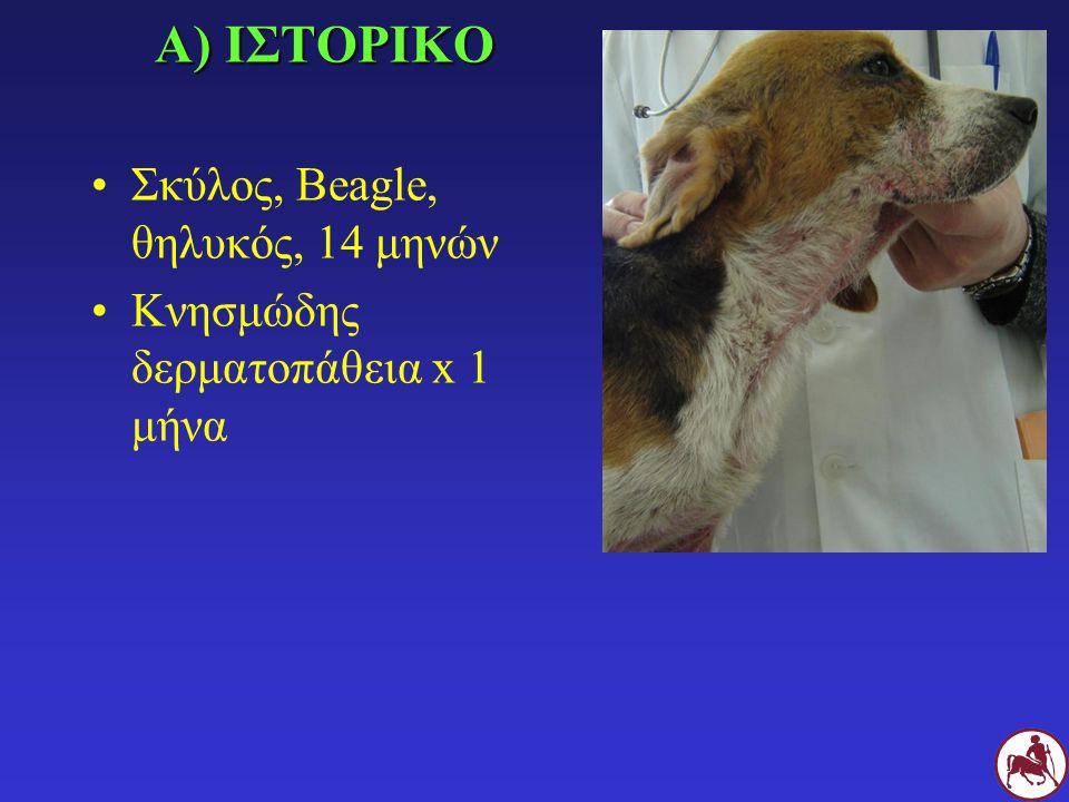 Β) ΚΛΙΝΙΚΗ ΕΞΕΤΑΣΗ Γενικευμένη δερματίτιδα με υποτρίχωση, αλωπεκία, ερύθημα, υπερχρωμία, βλατίδες, φλύκταινες, συρίγγια, διαβρώσεις, έλκη, δοθιήνες, πυοαιμορραγικό εξίδρωμα, εφελκίδες Περιφερική λεμφαδενομεγαλία