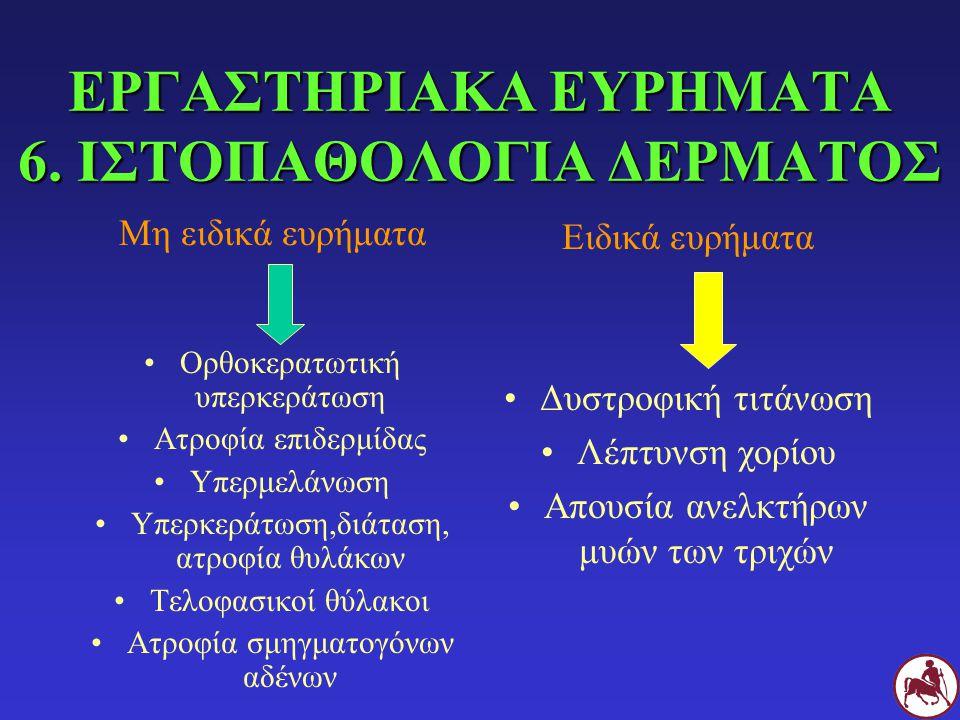 ΕΡΓΑΣΤΗΡΙΑΚΑ ΕΥΡΗΜΑΤΑ 6. ΙΣΤΟΠΑΘΟΛΟΓΙΑ ΔΕΡΜΑΤΟΣ Μη ειδικά ευρήματα Ορθοκερατωτική υπερκεράτωση Ατροφία επιδερμίδας Υπερμελάνωση Υπερκεράτωση,διάταση,