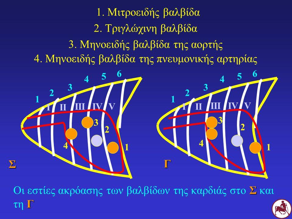 Σ Γ Οι εστίες ακρόασης των βαλβίδων της καρδιάς στο Σ και τη Γ 1 2 3 4 5 6 ΙΙΙ ΙΙΙΙVΙVV 1 2 3 4 5 6 ΙΙΙ ΙΙΙΙVΙVVΣ Γ 1. Μιτροειδής βαλβίδα 2. Τριγλώχιν