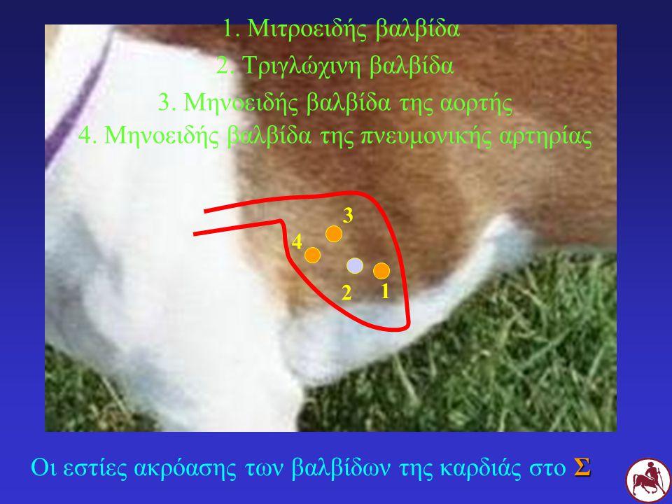 Σ Οι εστίες ακρόασης των βαλβίδων της καρδιάς στο Σ 1. Μιτροειδής βαλβίδα 2. Τριγλώχινη βαλβίδα 3. Μηνοειδής βαλβίδα της αορτής 4. Μηνοειδής βαλβίδα τ