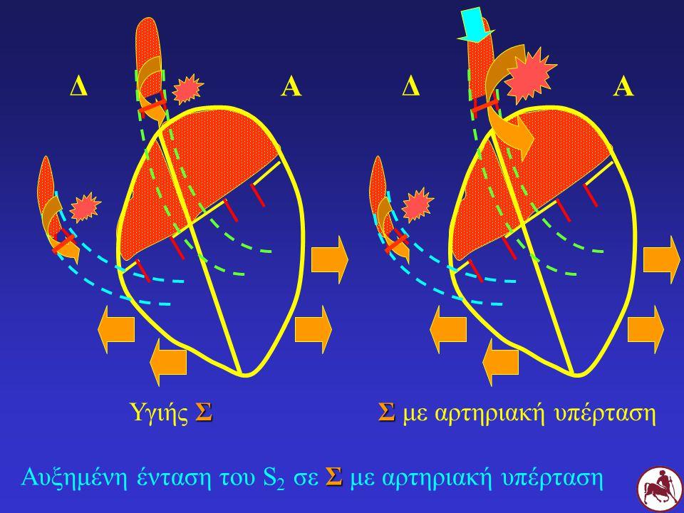Σ Αυξημένη ένταση του S 2 σε Σ με αρτηριακή υπέρταση Σ Υγιής Σ Σ Σ με αρτηριακή υπέρταση Δ Α Δ Α