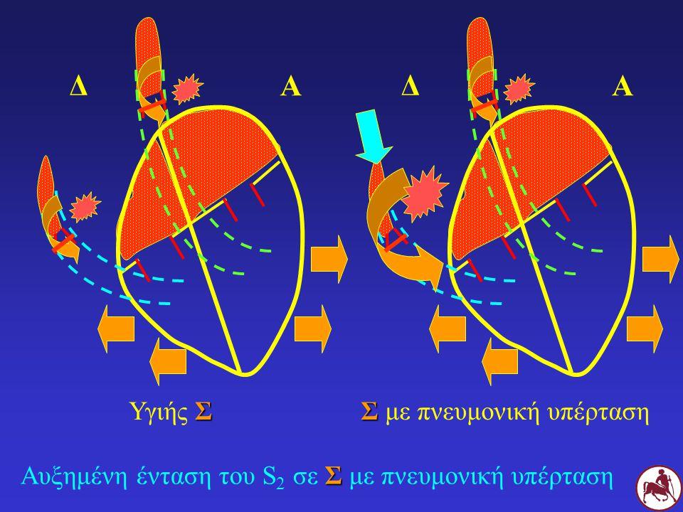 Σ Αυξημένη ένταση του S 2 σε Σ με πνευμονική υπέρταση Σ Υγιής Σ Σ Σ με πνευμονική υπέρταση Δ Α Δ Α