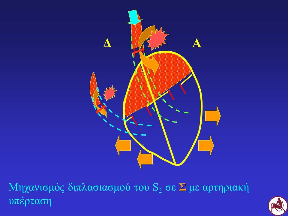 Σ Μηχανισμός διπλασιασμού του S 2 σε Σ με αρτηριακή υπέρταση Δ Α