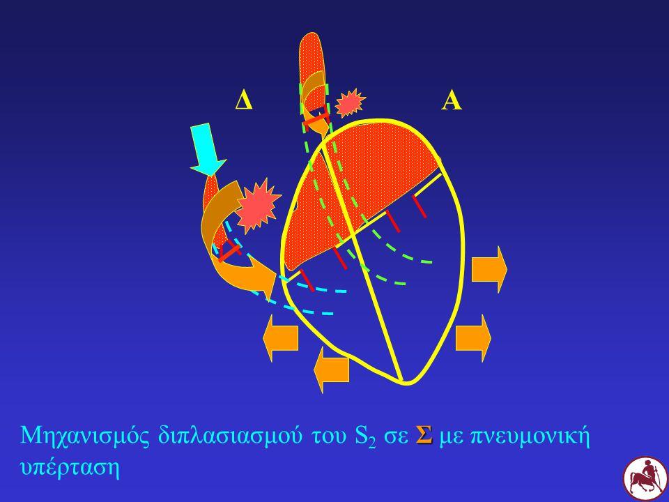 Σ Μηχανισμός διπλασιασμού του S 2 σε Σ με πνευμονική υπέρταση Δ Α
