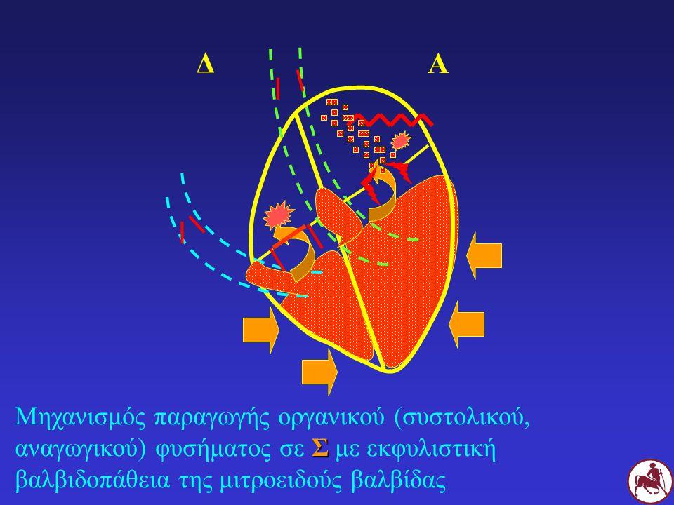 Σ Μηχανισμός παραγωγής οργανικού (συστολικού, αναγωγικού) φυσήματος σε Σ με εκφυλιστική βαλβιδοπάθεια της μιτροειδούς βαλβίδας Δ Α
