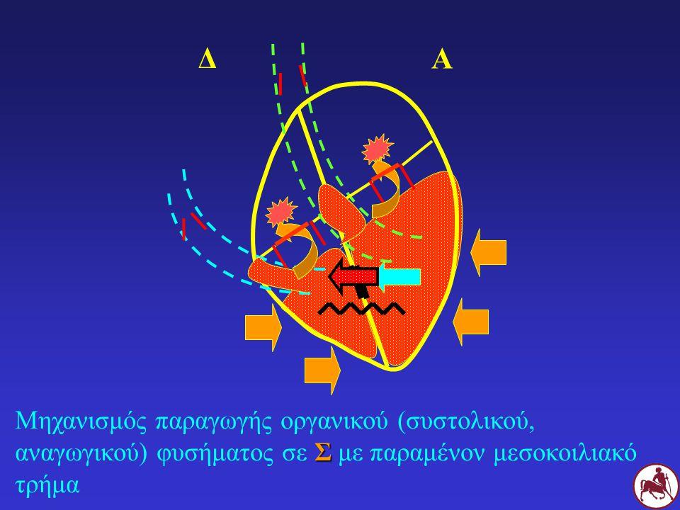 Σ Μηχανισμός παραγωγής οργανικού (συστολικού, αναγωγικού) φυσήματος σε Σ με παραμένον μεσοκοιλιακό τρήμα Δ Α