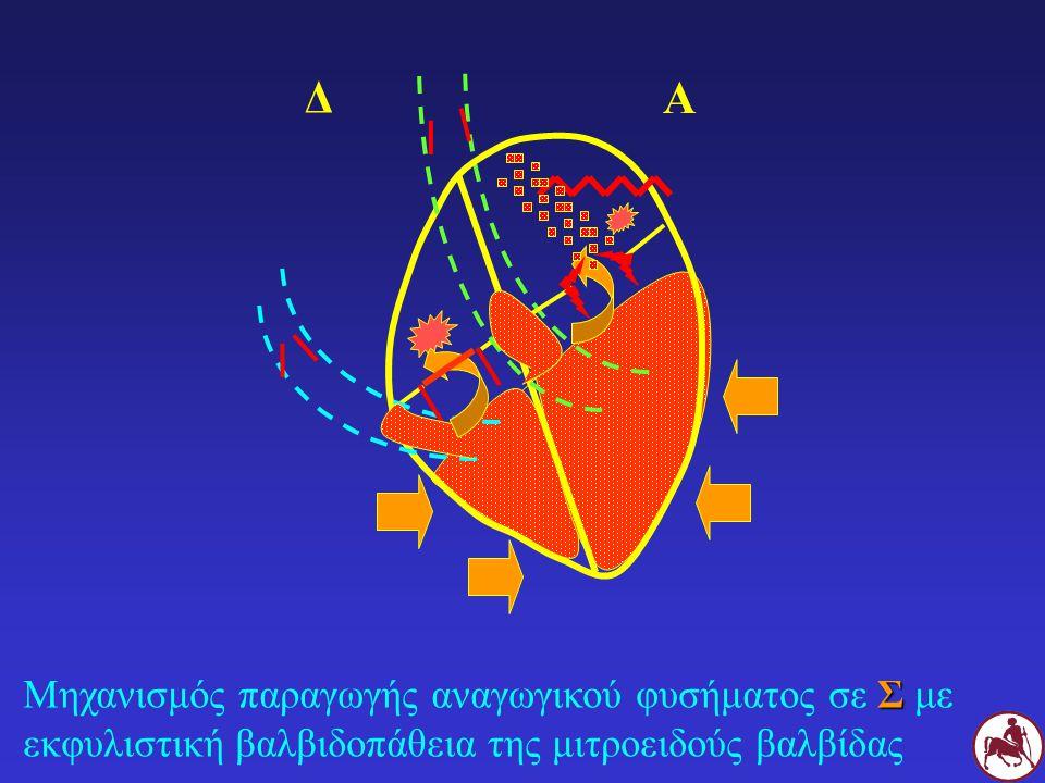 Σ Μηχανισμός παραγωγής αναγωγικού φυσήματος σε Σ με εκφυλιστική βαλβιδοπάθεια της μιτροειδούς βαλβίδας Δ Α