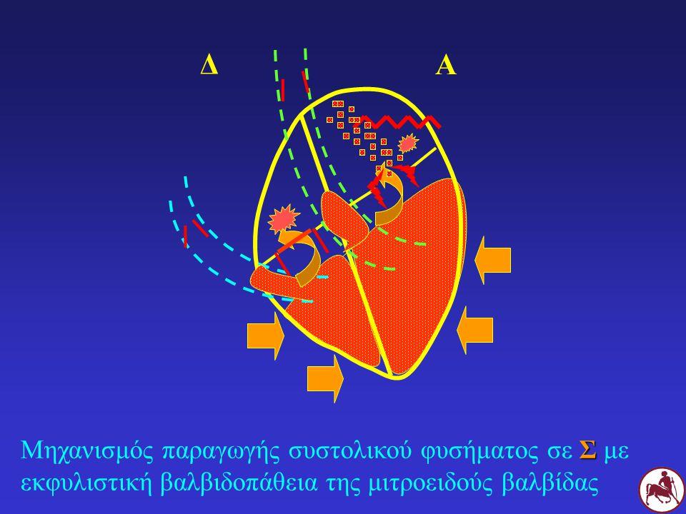 Σ Μηχανισμός παραγωγής συστολικού φυσήματος σε Σ με εκφυλιστική βαλβιδοπάθεια της μιτροειδούς βαλβίδας Δ Α
