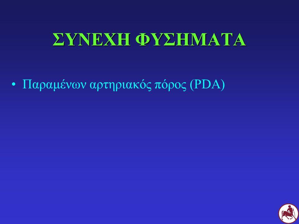 ΣΥΝΕΧΗ ΦΥΣΗΜΑΤΑ Παραμένων αρτηριακός πόρος (PDA)